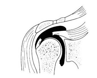 手绘细菌三型图