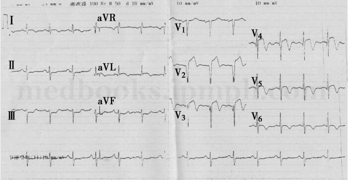 性爱技术ckck_急性心肌梗死:心电图与造影结果不一致怎么办?